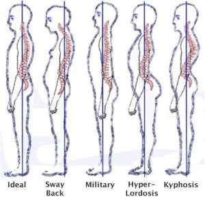 Ideal Posture and Deviations